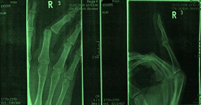Luxation 3. Finger rechts